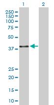 Western blot - PTENP1 antibody (ab104517)