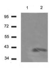 Western blot - LYVE1 antibody (ab104620)