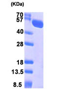 SDS-PAGE - STCH protein (ab104640)