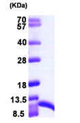 SDS-PAGE - S100 alpha 6 protein (ab104645)