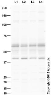 Western blot - Anti-GABA A Receptor beta 3 antibody (ab104659)