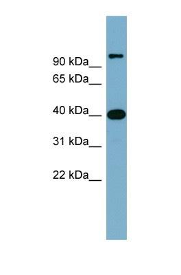 Western blot - CCNDBP1 antibody (ab104664)