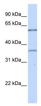 Western blot - TBX15 antibody (ab104672)