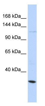 Western blot - Maxi Potassium channel alpha antibody (ab104711)