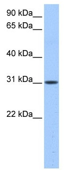 Western blot - HUS1B antibody (ab104713)