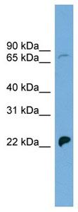 Western blot - Sodium Iodide Symporter antibody (ab104716)
