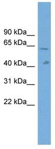 Western blot - SLC22A10 antibody (ab104717)