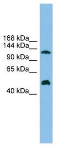 Western blot - GART antibody (ab104719)