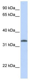 Western blot - UCK2 antibody (ab104731)