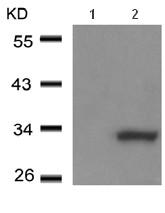 Western blot - CCDC106 antibody (ab104734)