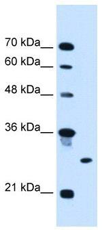 Western blot - RNF39 antibody (ab104747)