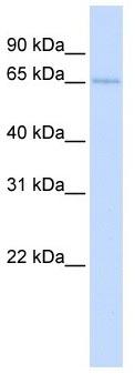 Western blot - TKTL2 antibody (ab104775)