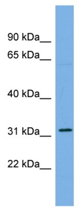Western blot - CDCA5 antibody (ab104780)