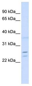 Western blot - TPD52 antibody (ab104781)