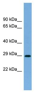 Western blot - RAB40C antibody (ab104785)