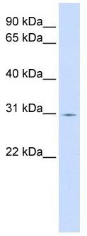 Western blot - ZNF501 antibody (ab104788)