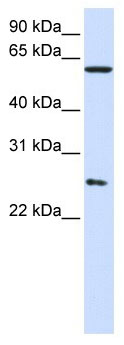 Western blot - TCP1 eta antibody (ab104790)