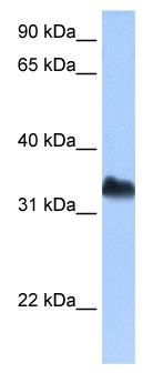 Western blot - Dnd1 antibody (ab104792)