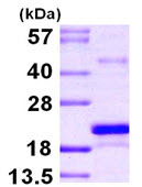 SDS-PAGE - MSRB3 protein (ab104796)