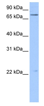 Western blot - Filensin antibody (ab104799)