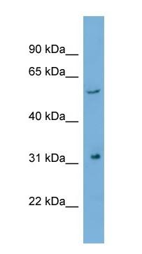 Western blot - REM antibody (ab104805)