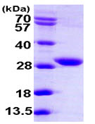 SDS-PAGE - FVT1 protein (ab104822)