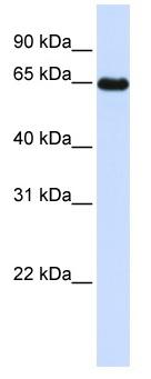 Western blot - LMOD1 antibody (ab104858)