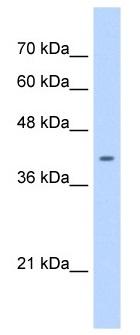 Western blot - ST6GALNAC6 antibody (ab104861)