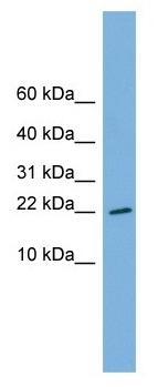 Western blot - RPS13 antibody (ab104862)