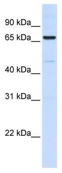 Western blot - ACSL5 antibody (ab104892)
