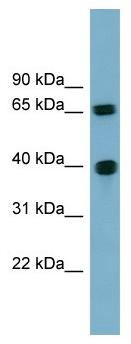 Western blot - Cyclin J antibody (ab104895)