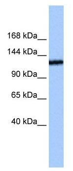 Western blot - TEX2 antibody (ab104924)