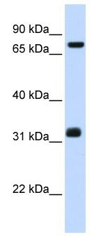 Western blot - TCP10 antibody (ab104925)