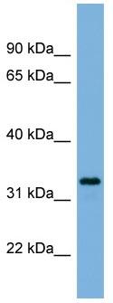 Western blot - PEX11A antibody (ab104959)