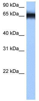 Western blot - hnRNP M3-M4 antibody (ab104976)