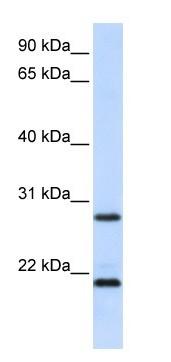 Western blot - MUC1 antibody (ab104978)