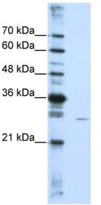 Western blot - EMG1 antibody (ab104985)
