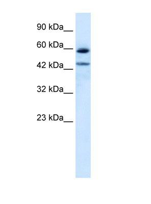 Western blot - Thyroid Hormone Receptor alpha 1+2 antibody (ab105003)
