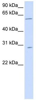 Western blot - PNPLA4 antibody (ab105006)
