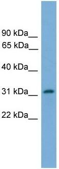 Western blot - PIGL antibody (ab105052)