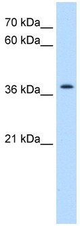 Western blot - Transmembrane protein 30A antibody (ab105062)