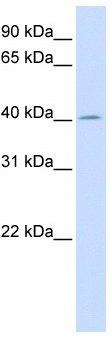 Western blot - ACAA2 antibody (ab105063)