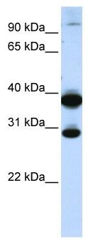Western blot - zinc finger protein 138 antibody (ab105073)