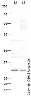 Western blot - Anti-Tafazzin / TAZ antibody (ab105104)