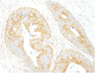 Immunohistochemistry (Formalin/PFA-fixed paraffin-embedded sections) - eIF3A antibody (ab105113)