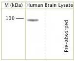 Western blot - Amyloid beta precursor protein antibody (ab105121)