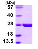 SDS-PAGE - LYPLA2 protein (ab105129)