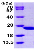 SDS-PAGE - calcyphosine protein (ab105131)