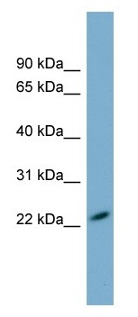 Western blot - MXRA7 antibody (ab105153)