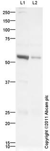 Western blot - Anti-PIAS2 antibody (ab105176)